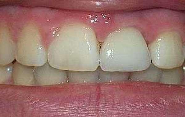 Gums Between Teeth Hurt Activation .zip Torrent Full Version Pc 64bit