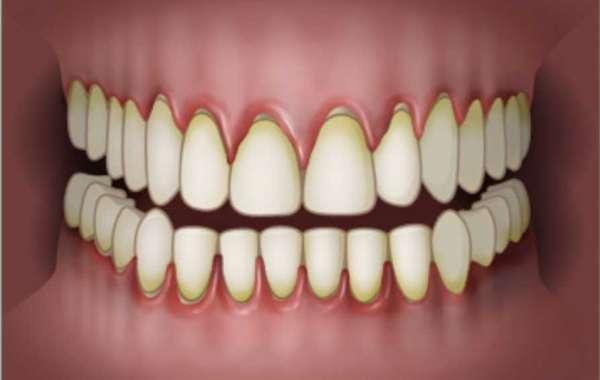 Torrent Sore Teeth Gums Treatment Zip Key Crack